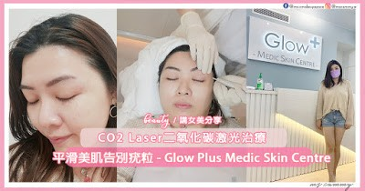 【#療程】平滑美肌告別疣粒 - Glow Plus Medic Skin Centre CO2 Laser二氧化碳激光治  ...